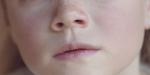 NOSE; NEZ; FACE